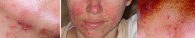 Подкожный клещ угревой железницы Demodex folliculorum и Demodex brevis (демодекс), Демодекоз Подкожный – кожное заболевание, поражающее кожу лица и вызываемое клещом угревой железницы Demodex folliculorum (демодекс)