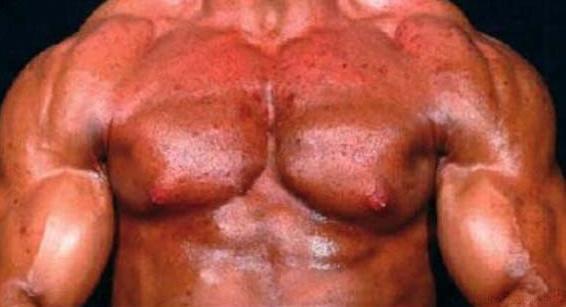 Как выглядят стероидные прыщи, акне, угри, комедоны