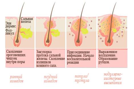 Воспалительные и невоспалительные проявления акне (прыщей): комедоны, папулы, пустулы