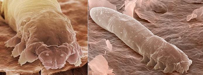 Подкожный клещ угревой железницы Demodex folliculorum и Demodex brevis (демодекс), прыщи из-за подкожного клеща демодекса, демодекоз